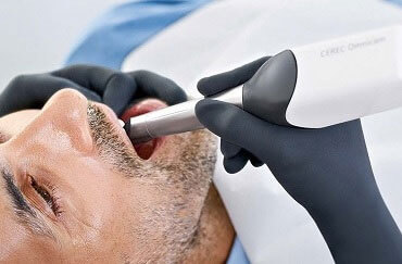 Man during treatment with CEREC Omnicam - tiny, handheld camera