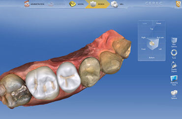 CEREC software with enlarged image of teeth