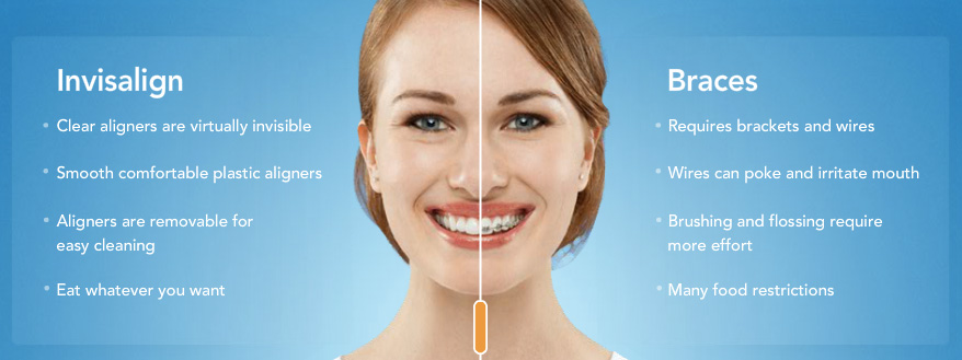 Woman in split screen showing braces vs Invisalign characteristics