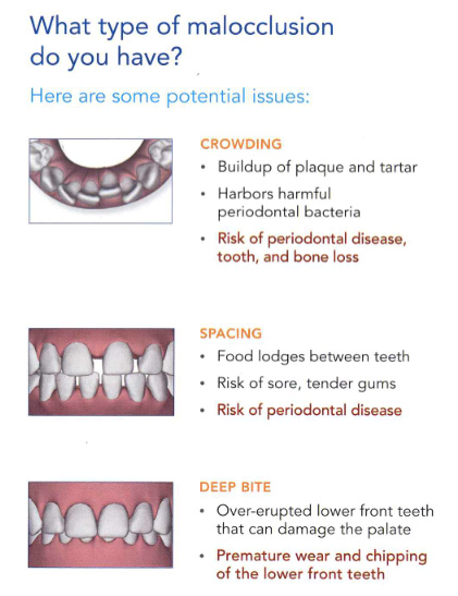 Malocclusion graphics - crowding, spacing, deep bite