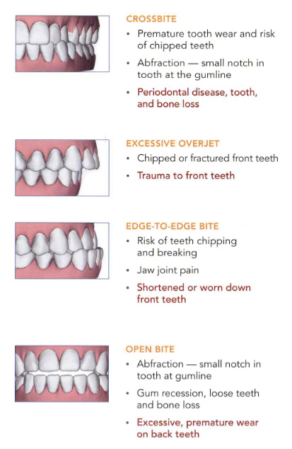 Graphics of crossbite, excessive overbite, edge to edge bite, and open bite