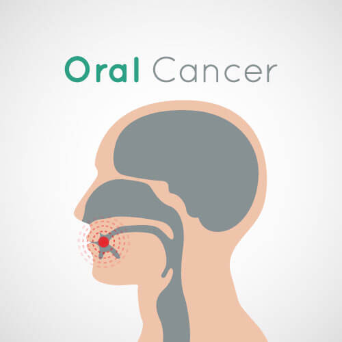 Graphic with a side profile and a target in the mouth indicating oral cancer