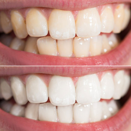 Before and after Zoom! Whitening